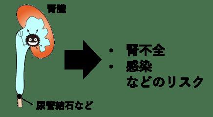 水腎症のリスクの説明
