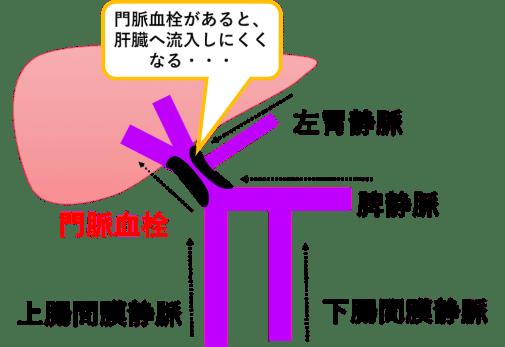 門脈血栓症の図