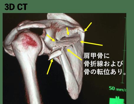 肩甲骨骨折の3DCT画像