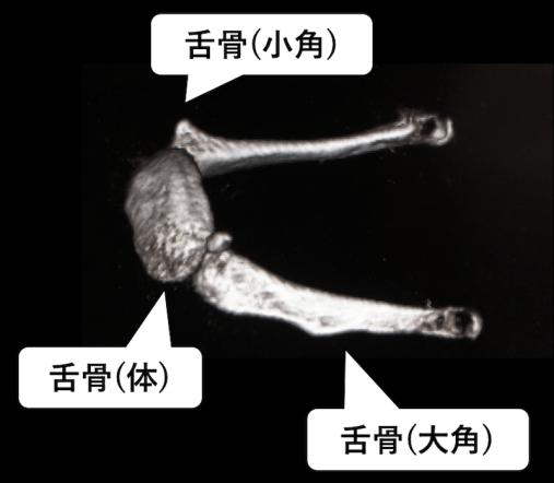 舌骨の3DCT画像