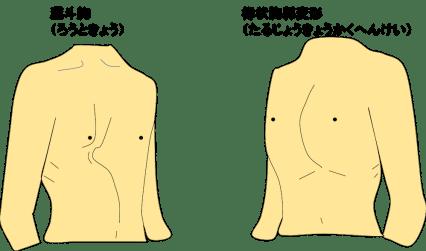 胸郭の変形