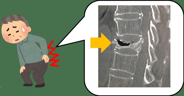 腰椎圧迫骨折の画像付きイラスト