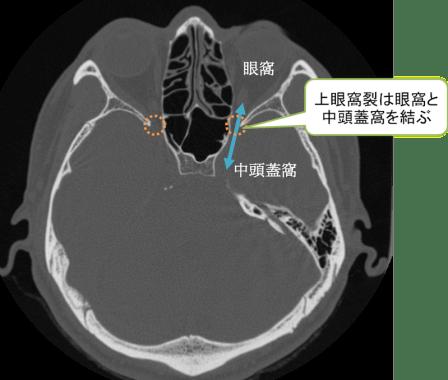 上眼窩裂のCT画像の解剖