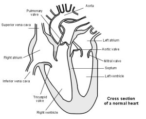 Atrial Septal Defect Hole In The Heart Information