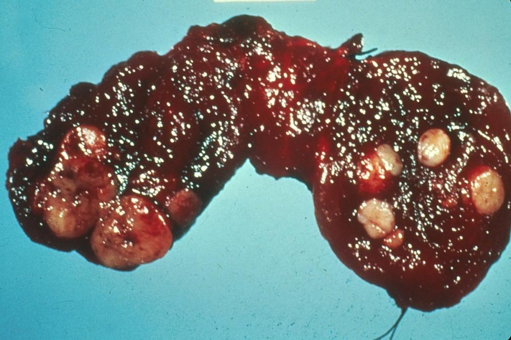 Autonomous Thyroid Nodule (Thyroid Nodules)