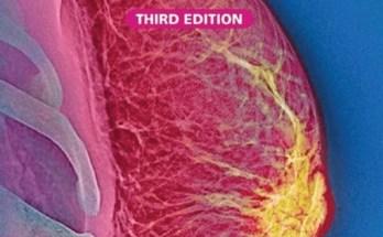 ABC Of Breast Diseases pdf