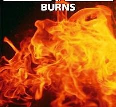 ABC of Burns pdf