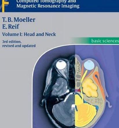 Pocket Atlas of Sectional Anatomy Volume I PDF