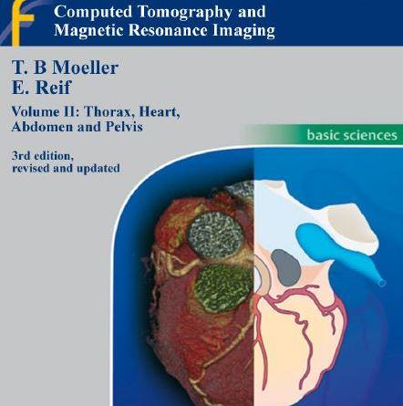 Pocket Atlas of Sectional Anatomy Volume II PDF