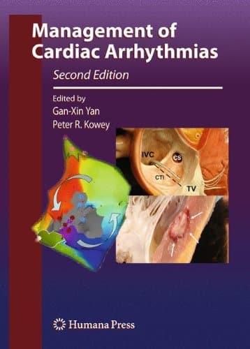 Management of Cardiac Arrhythmias 2nd Edition