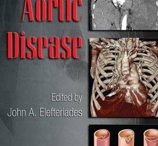 Acute Aortic Disease PDF
