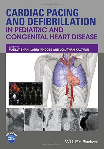 Cardiac Pacing and Defibrillation in Pediatric and Congenital Heart Disease PDF
