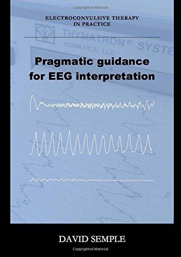 Pragmatic guidance for EEG interpretation PDF