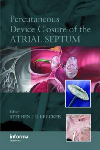 Percutaneous Device Closure of the Atrial Septum PDF