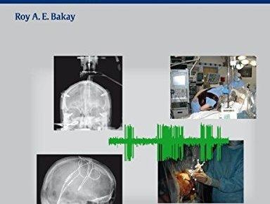 movement disorder surgery 1st edition pdf