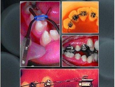 Orthodontic Pearls 1st Edition PDF