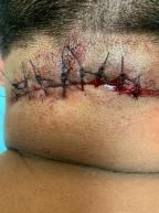 Surgical Wound from Excision