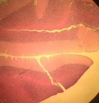 Normal Cerebellum Histology