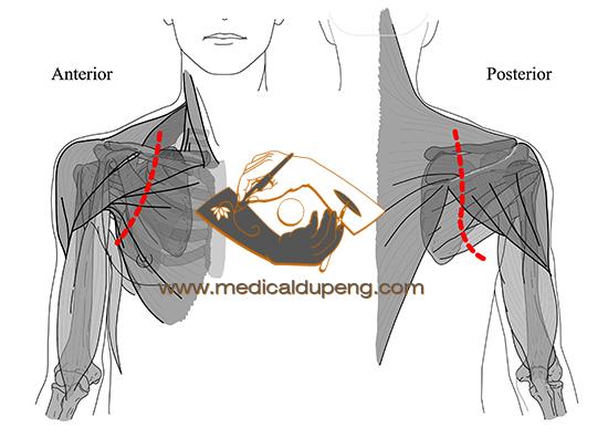 肩部手术切口