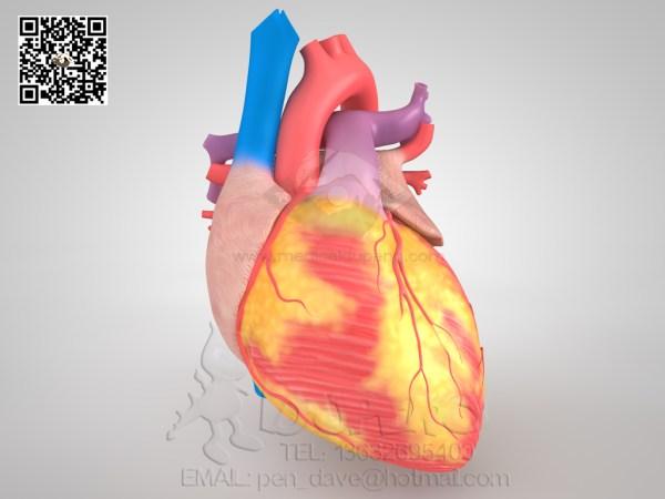心脏三维模型
