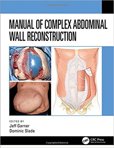 Manual of Complex Abdominal Wall Reconstruction 1st Edition