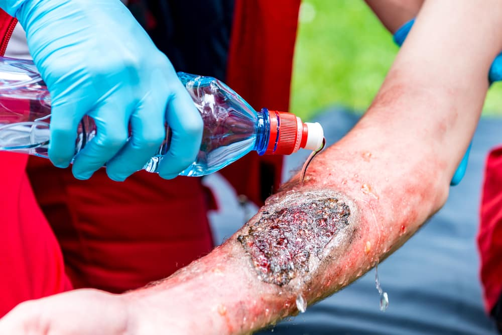 Burn Injuries - CCT