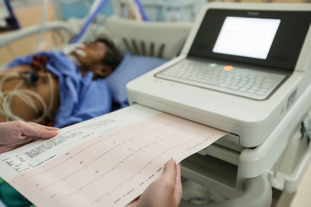 12-Lead EKG for Nurses