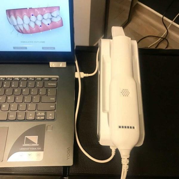 iTero Element Flex Intraoral Scanner