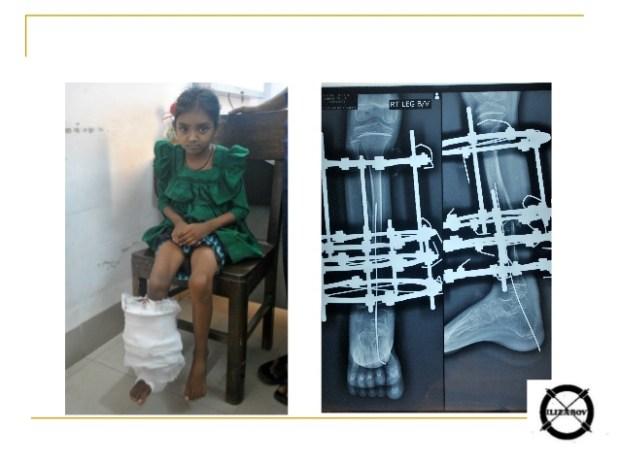 компрессионно-дистракционный, аппарат Илизарова, методика, спица, кость, жесткость, деталь