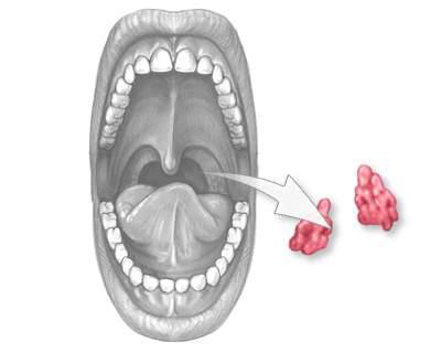 тонзилэктомия
