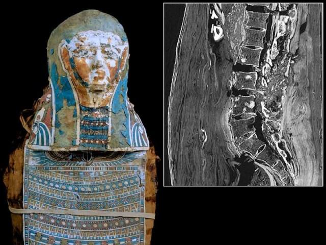 мумия, рак предстательной железы