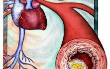 Ученые нашли новый препарат для снижения холестерина