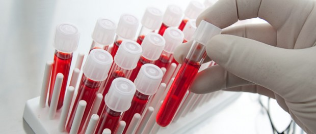 бесклеточный ДНК-анализ, синдром Дауна