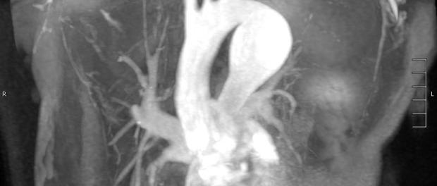 Синдром Эберса-Данло и болезнь Эрдгейма - причины аневризмы аорты