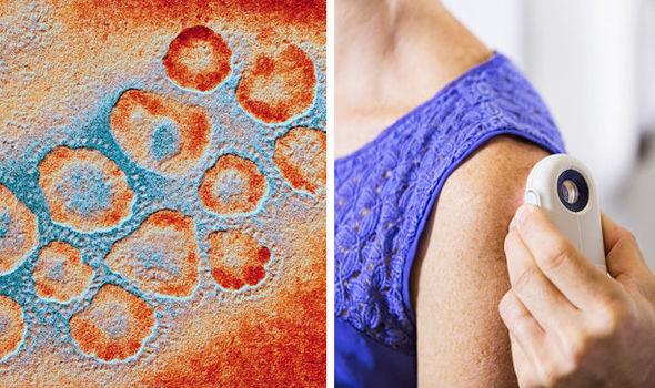 герпес, рак кожи