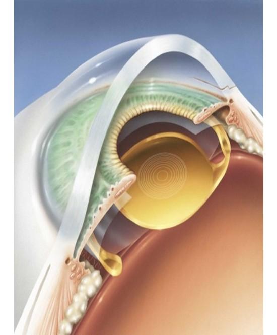 Операция по удалению катаракты, катаракта, операция
