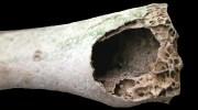 костная ткань