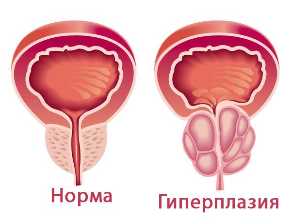 гиперплазия предстательной железы