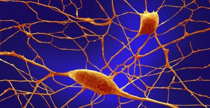 аутизм, клетки кожи, стволовые клетки, органоид