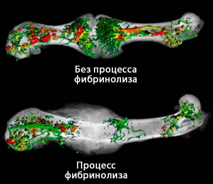 свертывание крови, костная ткань