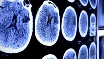 рак головного мозга, глиобластома