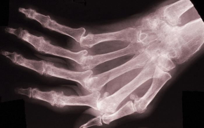 сердечно-сосудистые заболевания, ревматоидный артрит