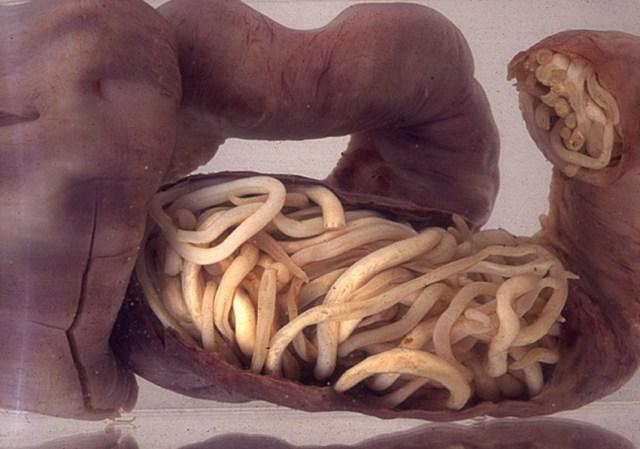 паразиты, черви, женщины, фертильность, гигантские аскариды, нематоды, беременность