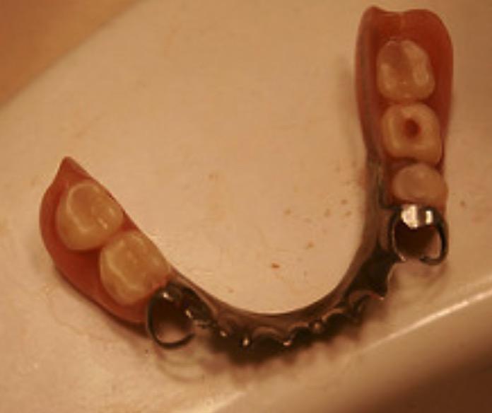 выпадение зубов, сахарный диабет, десна