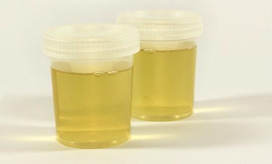 моча, цистит, инфекция мочевыводящих путей