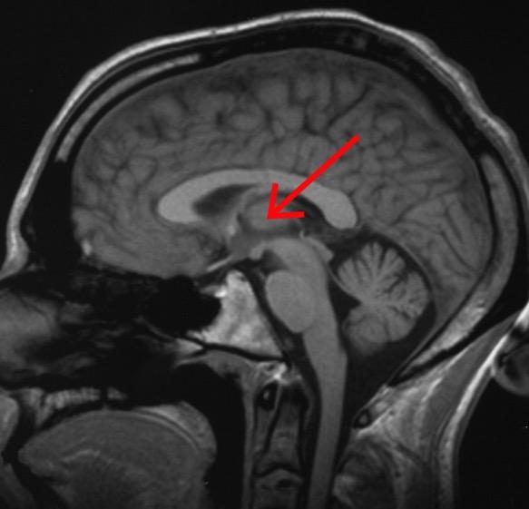 таламус, подушка таламуса, головной мозг, контекстуальная информация