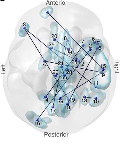аутизм, головной мозг, Nature Communications
