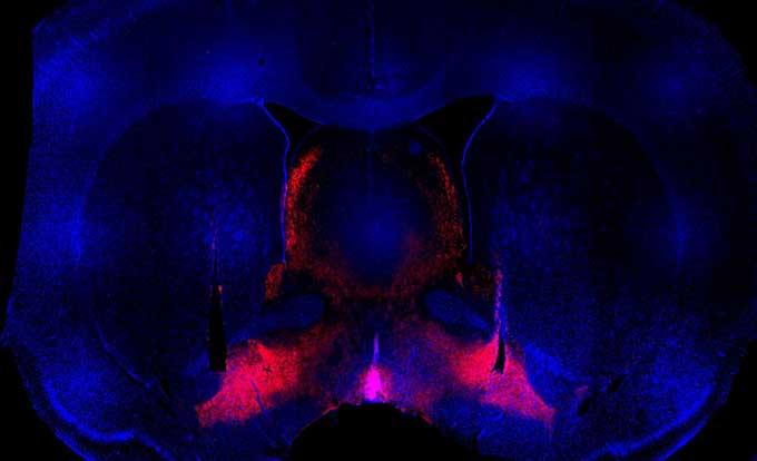 вредные привычки, Neuron