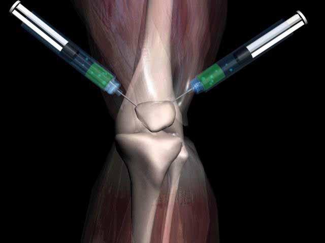 остеоартрит, артроз, коленный сустав