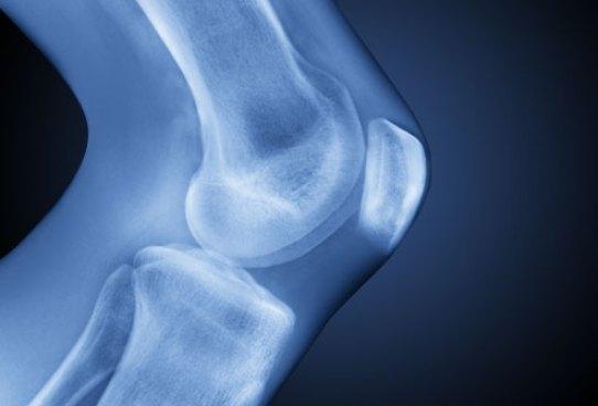 артроз, коленный сустав